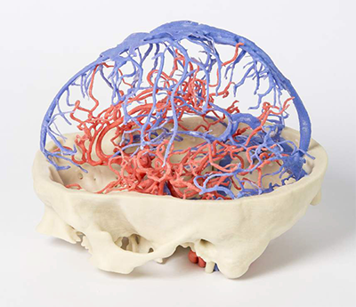 3D printed, full-color model of the brain highlights venous arterial circulation