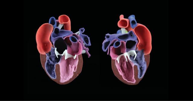 CJP 心脏模型